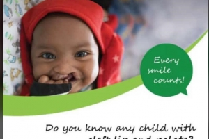Tell A Friend to Tell A Friend: FREE Cleft Lip and Palate Repair